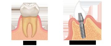 天然歯とインプラント比較